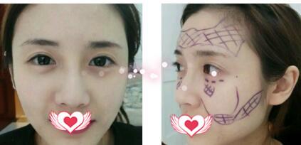 中信惠州医院做自体脂肪全脸填充案例 术后脸型变得很美很开心
