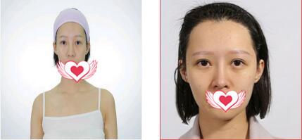 广州曙光整形做隆鼻案例 术后分享我变美的心得体验