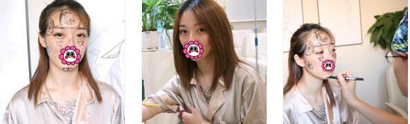 北京长虹整形于智宏医生自体脂肪全脸填充案例 每天都自信满满