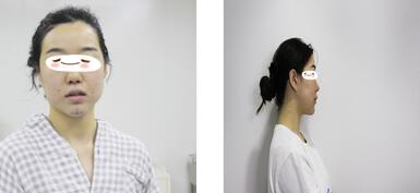 北京炫美整形徐学东医生假体垫下巴案例 360度无死角的仙女