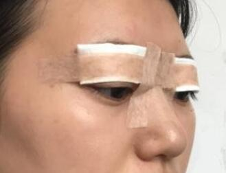 丹东新运整形双眼皮案例 术后的变化很大也很洋气了
