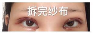 广元朗睿整形刘峰做全切双眼皮+去皮去脂+开眼角案例 术后很喜欢
