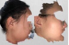 昆明美伊萊整形覃愛祥醫生面部吸脂案例 感覺這是我做的明智之舉