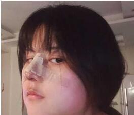 上海華美整形隆鼻案例 太喜歡現在我的新鼻子啦~