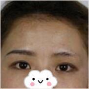 長沙伊百麗整形余文杰醫生紋眉案例 眉毛形狀我是很喜歡