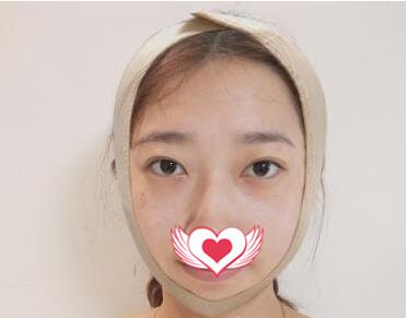 鄭州人民醫院做下頜角磨骨術案例 術后面部線條特別好看我喜愛
