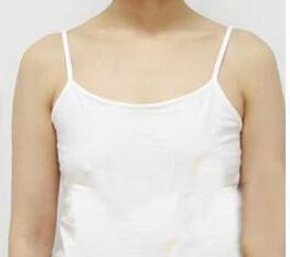 西安藝星整形自體脂肪隆胸案例 現在我的乳房形狀不但看起來漂亮
