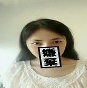 重慶鄭荃麗格整形毛鈺婷醫生紋眉案例 眉形還是挺不錯的