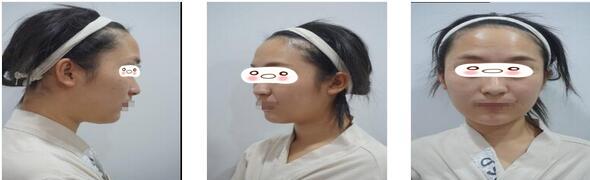 重慶鉑生整形杜亞旭醫生自體脂肪全臉填充案例 出門可以美美的了