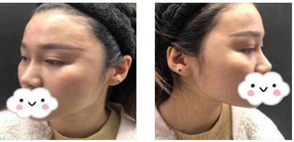 武汉新至美整形聂祝锋做玻尿酸丰太阳穴案例 术后我很喜欢我的脸