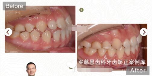 深圳慈恩齿科整形李楠做牙齿矫正案例