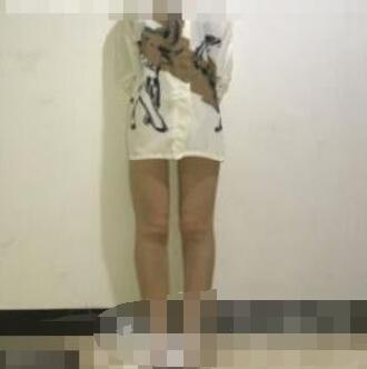 河北工大附院整形瘦小腿案例 术后小腿变得又瘦又好看