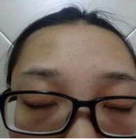 上海薇琳整形紋眉案例 半個月,眉毛越來越自然了