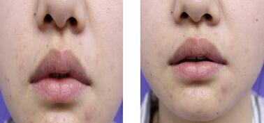 長沙美沃整形孔偉立醫生厚唇改薄案例 我很喜歡現在嘴唇的樣子