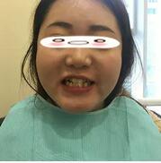 成都博愛整形牙齒矯正案例 我選擇的隱形矯治,感覺不錯