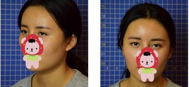 重慶藝星整形段春巍醫生眼部綜合案例 朋友都說我的變化很大