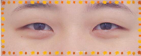 北京東方瑞麗整形做雙眼皮案例 術后90天全程變化記錄 我很高興