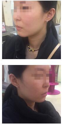 成都天姿整形做面部填充案例 術后我的臉型飽滿豐盈 我很喜歡