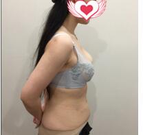 成都天姿整形李烈做腰腹部吸脂案例 術后身材變好可以駕馭旗袍了