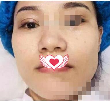 深圳醫院整形做肉毒素瘦臉案例 術后自拍照都無需美顏了