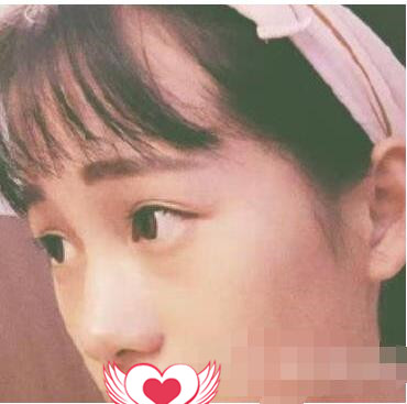廣州名韓整形做隆鼻案例 術后分享我鼻子變美經歷