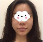 南宁达美整形厚唇改薄案例 术后两个月整体来说还不错