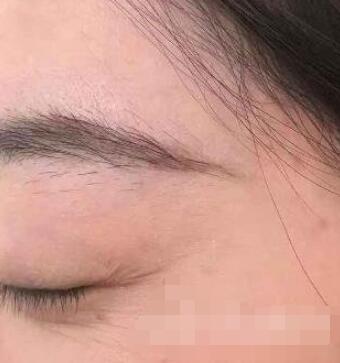 长春子田整形眼角细纹祛除案例 现在看起来比以前年轻多了