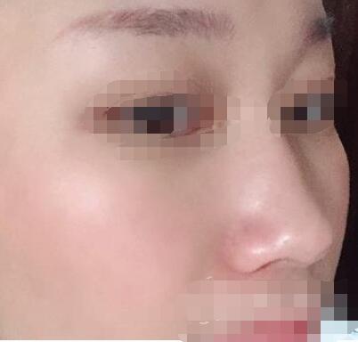 苏州附二院整形注射除皱案例 皱纹没了皮肤也变得有弹力了