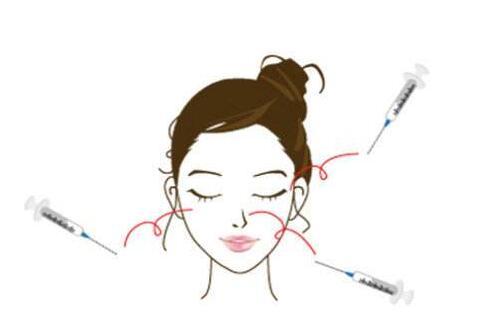 玻尿酸注射隆下巴是一種很精細的手術嗎