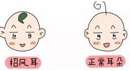 招風耳如何矯正才能符合寶媽們理想中的耳朵形狀呢