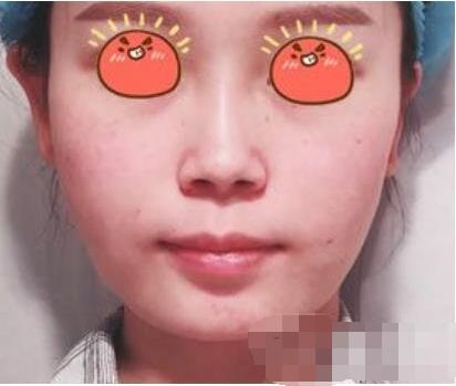合肥壹美尚整形做肉毒素瘦臉案例 我瘦臉術前術后效果圖分享