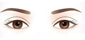 期待的雙眼皮術后眼睛變得明亮迷人,卻有疤痕增生是怎么回事?