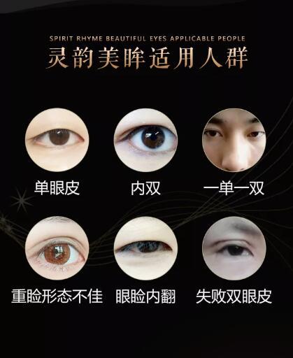 靈韻美眸較普通雙眼皮手術的五大優勢