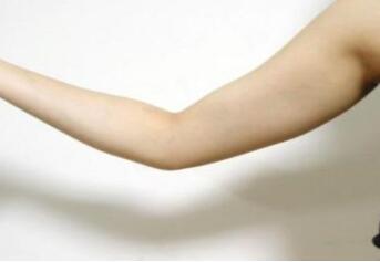 今日熱搜:手臂吸脂術后無淤青