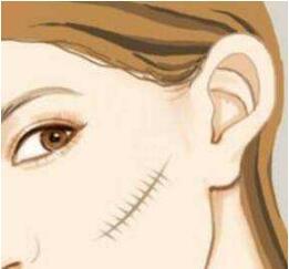 瘢痕如何治療效果好?都說自體脂肪是祛除瘢痕的利器