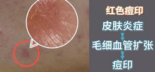 痘痘肌的原罪你搞清楚了嗎?殘留的痘印消除有兩大招!