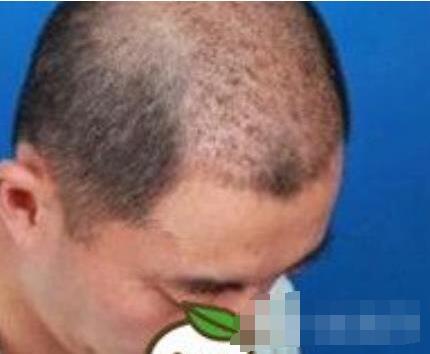上海科发源医院做头发种植案例