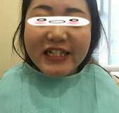 隱適美——隱形牙齒矯正器