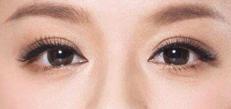 什么樣的雙眼皮適合亞洲人的?關于近期流行的歐式雙眼皮