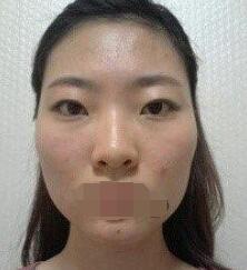 上海时光整形面部整形案例 现在脸也越来越变得漂亮