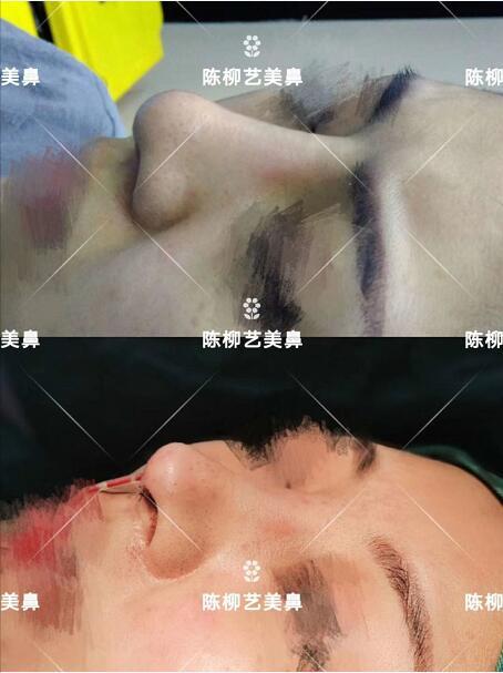 湖南韓美整形陳柳藝醫生美鼻案例