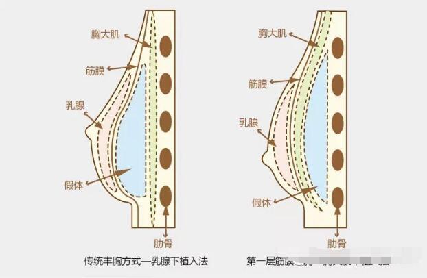 一起看看假體隆胸和脂肪隆胸之間的對話