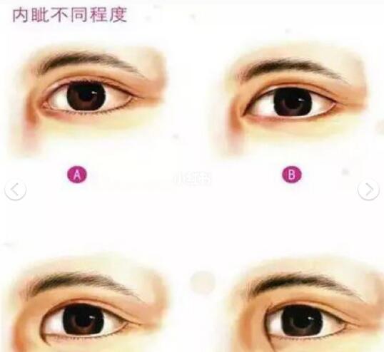 這樣子割才能得到好看的雙眼皮