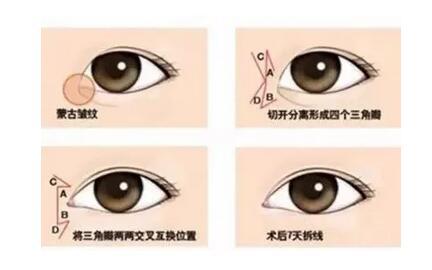 開眼角手術,你的術后護理決定了你的疤痕增生情況