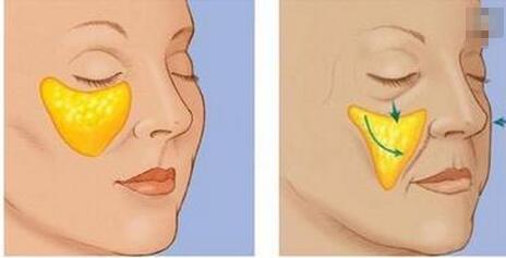 臉頰凹陷,自體脂肪填充,選擇哪個位置的脂肪活性相對較高?