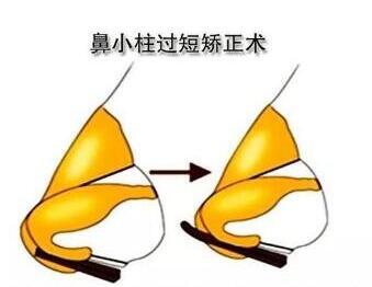 今日關注:鼻小柱延長兩種材料
