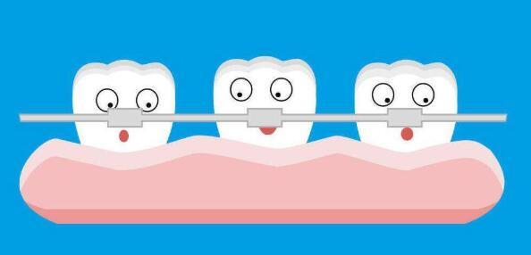 牙齒矯正的飲食禁忌都有哪些