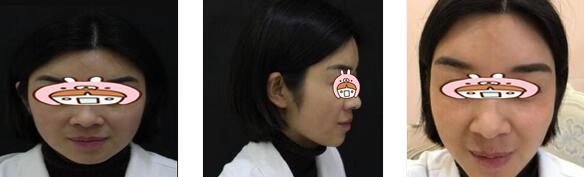 貴陽華美整形韓盛斌醫生熱瑪吉案例 皺紋、暗沉問題改善了很多