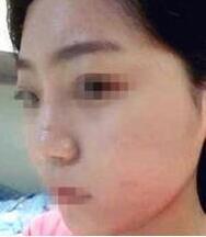 北京南加整形隆鼻手術案例 術后2個月從哪個角度自拍都特別的那種