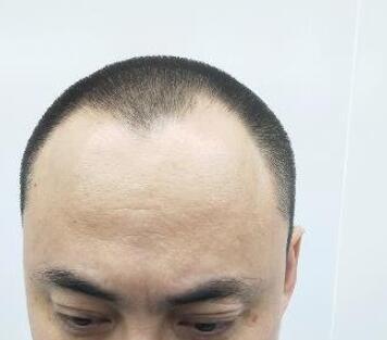 沈陽城本植發整形植發際線案例 經過一個細心的呵護頭發生長不錯